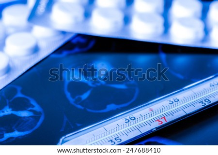 X-ray examination, thermometer and tablets for treatment of disease. In blue hard tones - stock photo