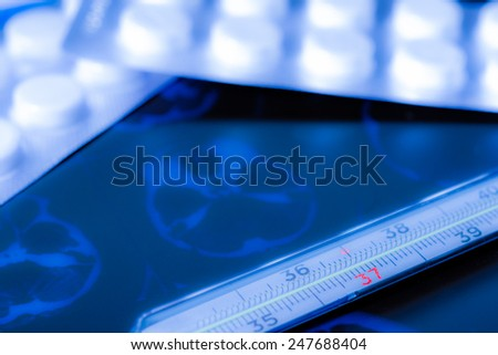 X-ray examination, thermometer and tablets for treatment of disease. In blue soft tones - stock photo