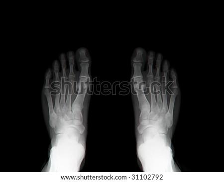 x-ray feet - stock photo