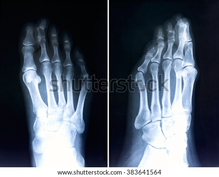 X-ray feet  / X-ray of foot fingers / Radiography with deformed toes. - stock photo