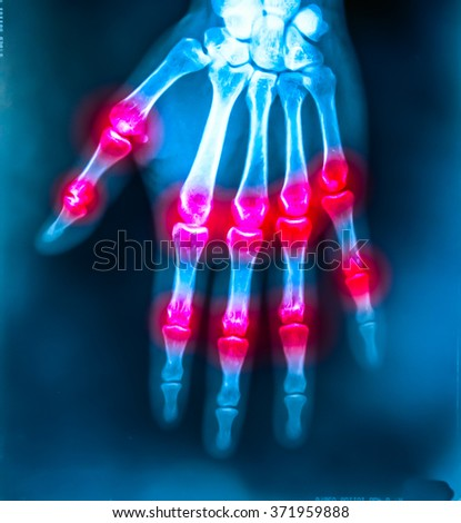 X-ray film hand show area of joint pain - stock photo