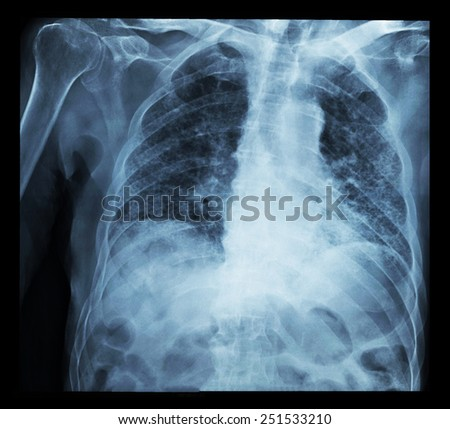 x-ray film of chest - stock photo
