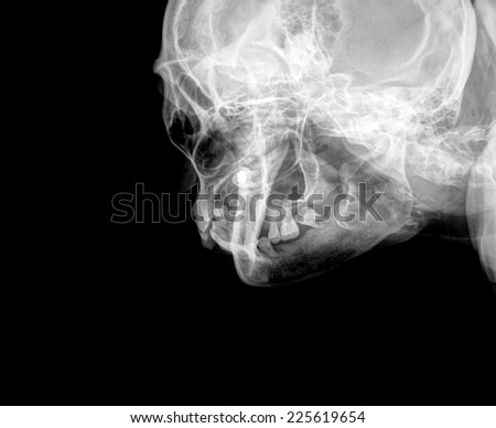 X-Ray film of face - frontal, looking up - stock photo