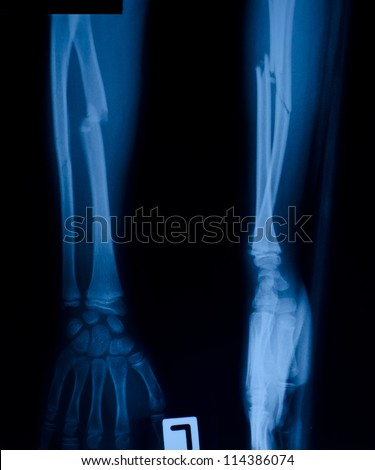 X ray film of proximal radius fracture. - stock photo