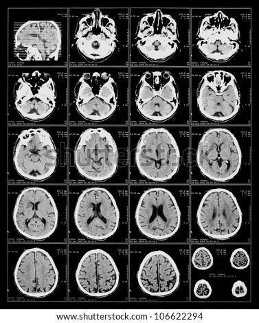 x-ray film of the brain computed tomography - stock photo