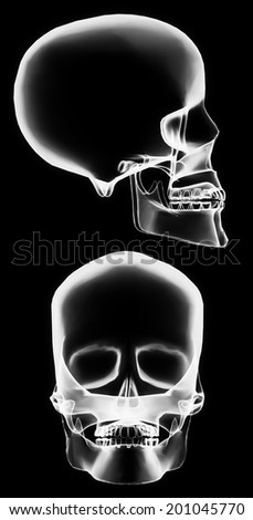 X-ray front and side skull in brightness white with black background
