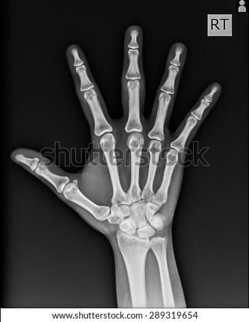 X-Ray Hand. - stock photo