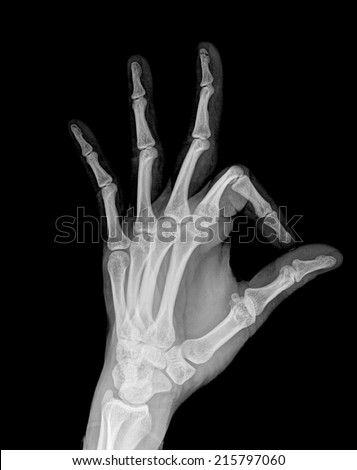 x-ray hand ( Hand Lateral ) on black background