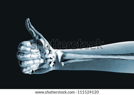 x-ray hand on black background - stock photo