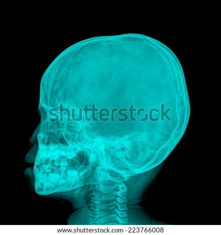 x-ray image - stock photo