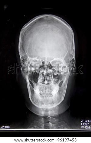 X-ray image - stock photo