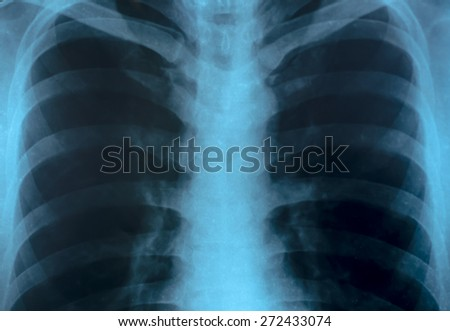 X-Ray Image Close up Of Human Chest - stock photo