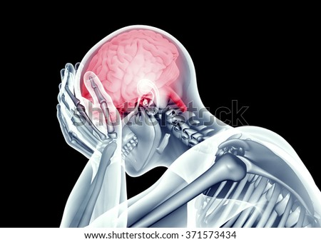x-ray image human head with headache pain - stock photo