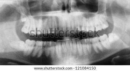 X-Ray image of a human jaw or mouth or teeth. - stock photo