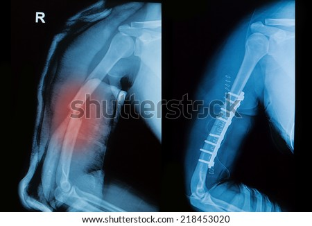x-ray image of broken arm bone show pre-post operation (Anatomy of fracture humerus )