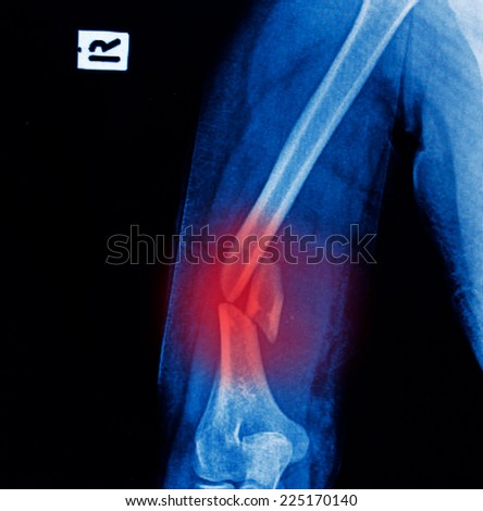 x-ray image of broken arm bone show pre-post operation (Anatomy of fracture humerus ) - stock photo