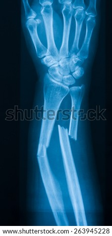 X-ray image of broken forearm, AP view, show fracture of ulna and radius bone - stock photo