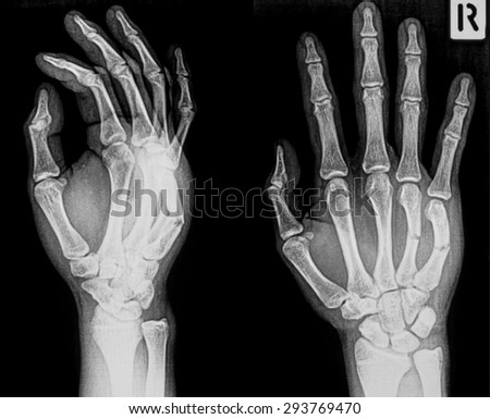 X-ray image of broken hand, AP and oblique view, show metacarpal fractures. - stock photo