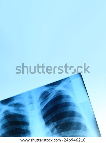 X-ray image of chest bones of adult, abstract blue background - stock photo