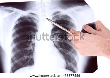 X-Ray Image of chest isolated on white. Showing something with pen - stock photo