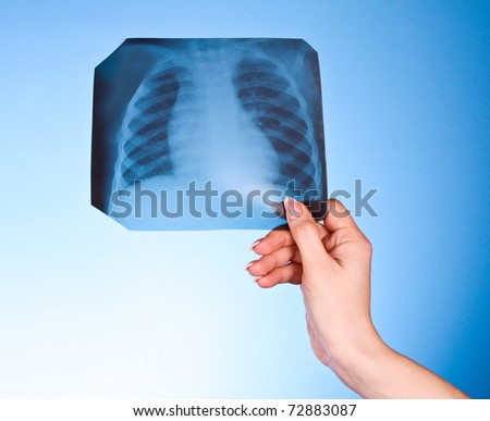 X-Ray Image of chest on blue background in hand - stock photo