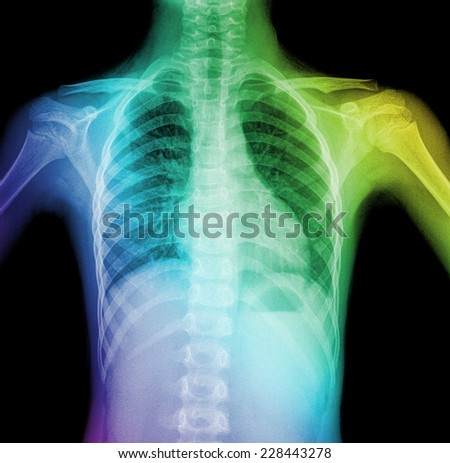 X-Ray Image Of child Healthy Chest MRI - stock photo