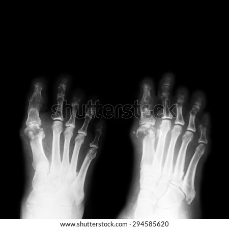 X-ray image of diabetic foot, AP and oblique view,