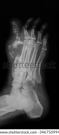 X-ray image of diabetic foot, oblique view. - stock photo