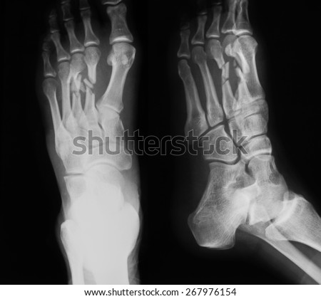 X-ray image of foot, AP and oblique view, show fracture of the second and third metatarsal bones.