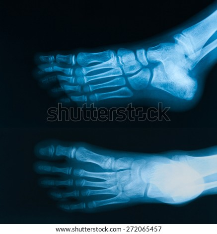 X-ray image of  foot  AP and oblique view, show toe and calcaneus fracture.