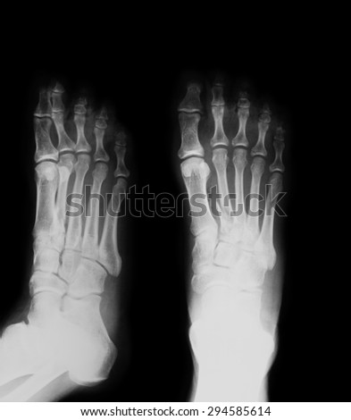 X-ray image of foot, AP and oblique view, Shows the second metatarsal fracture,
