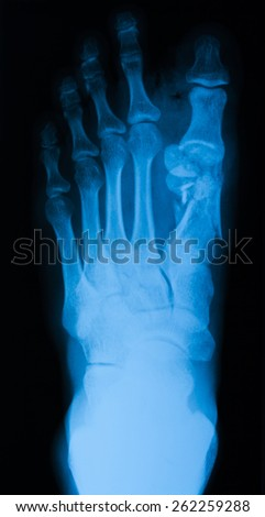 X-ray image of foot, AP view, show fracture of 1th metatarsal bone