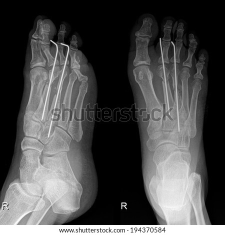 X-Ray image of foot depicts small pieces of iron bar