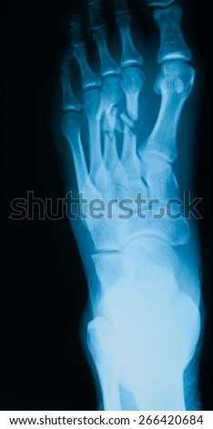 x-ray image of  foot, oblique view, show fracture of the second and third metatarsal