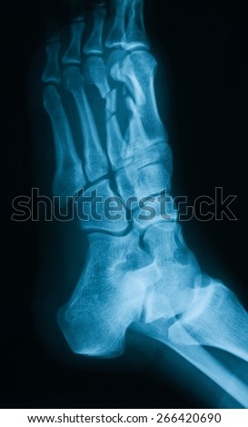 X-ray image of  foot, oblique view, show fracture of the second and third metatarsal  - stock photo