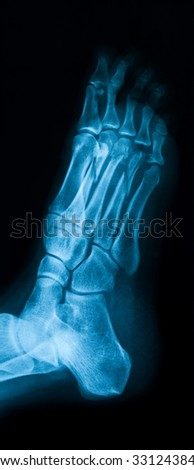 X-ray image of foot showing metatarsal bone fractures, oblique view.