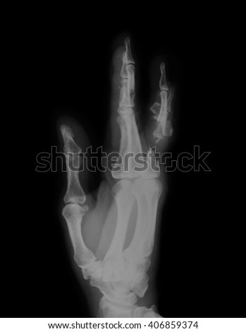 X-ray image of hand, oblique view , showing fractures of the middle and proximal phalanges - stock photo