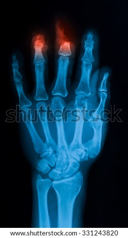 X-ray image of hand showing amputated ring and middle finger, PA view. - stock photo
