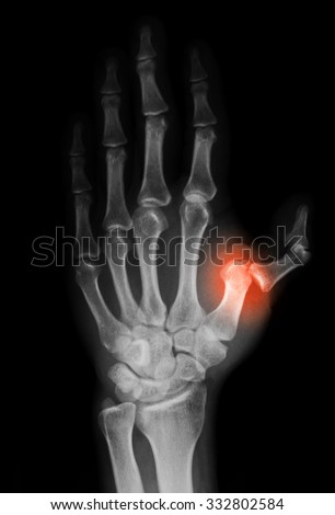 X-ray image of hand, shows fracture and dislocation of first metacarpal bone. - stock photo