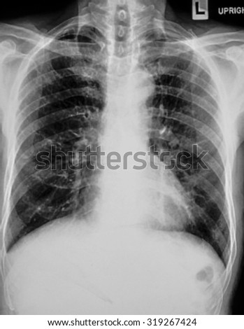 X-Ray Image Of Human Chest for a medical diagnosis - stock photo