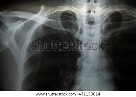 X-Ray Image Of Human Chest for a medical diagnosis. - stock photo