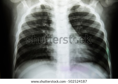 X-Ray Image Of Human Chest for a medical diagnosis.