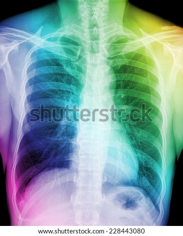 X-Ray Image Of Human Chest - TB screening - stock photo
