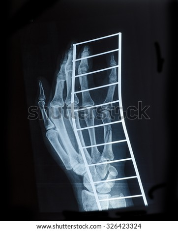 X-Ray image of human hand a fracture on the metal support