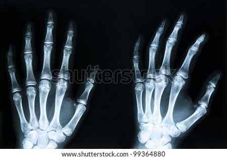 X-Ray image of human hands - stock photo