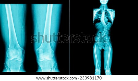 x-ray image of human have a long bone body - stock photo