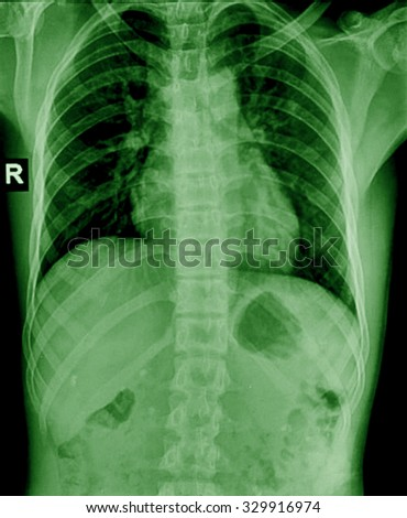 X-Ray Image Of humen Chest for a medical diagnosis - stock photo