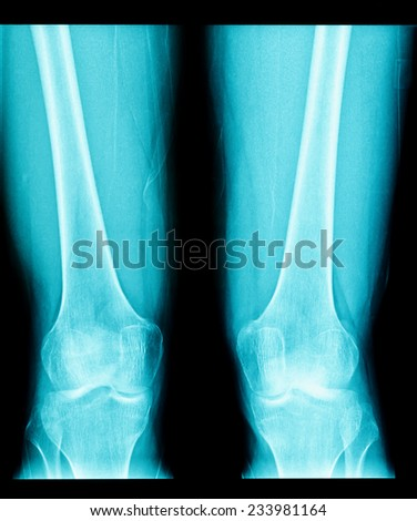 x-ray image of knee joint - stock photo