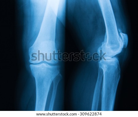X-ray image of knee joint, AP and lateral view. Showing knee arthritis.