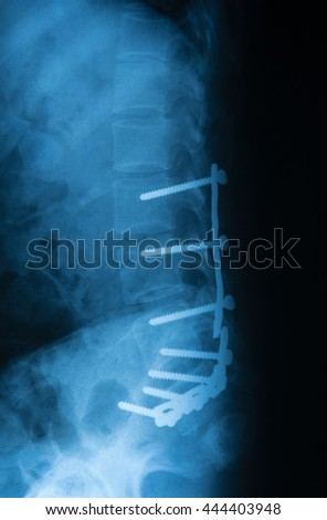 x-ray image of lateral lumbosacral(L-S) spin, after reduction and internal fixation